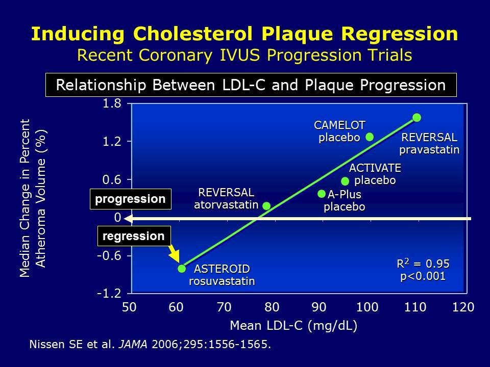 Атеросклероз стенозирующий сонных артерий